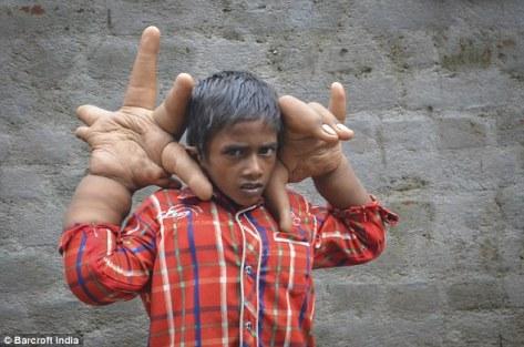 Bocah dengan tangan gajah