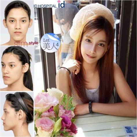 Gadis Thailand berhasil operasi wajah menjadi sangat cantik
