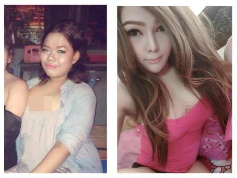 Pria Thailand operasi plastik menjadi wanita cantik