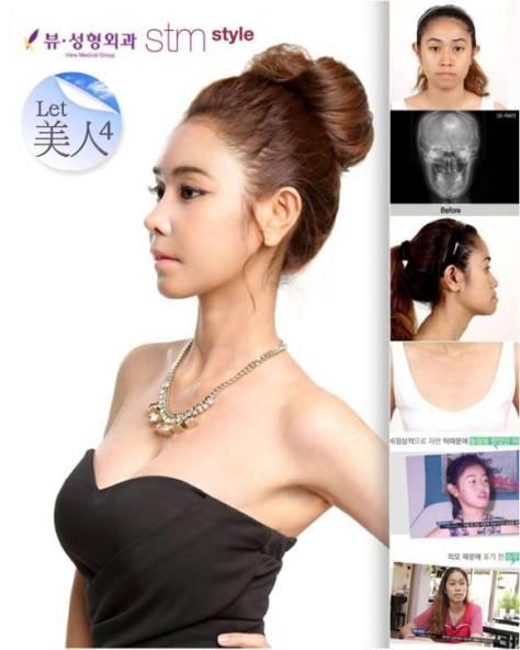 Wanita Thailand ini menjadi cantik setelah operasi plastik